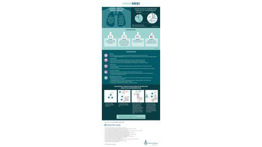 Lungenkrebs gehört zu den häufigsten - und tödlichsten - Krebsarten.