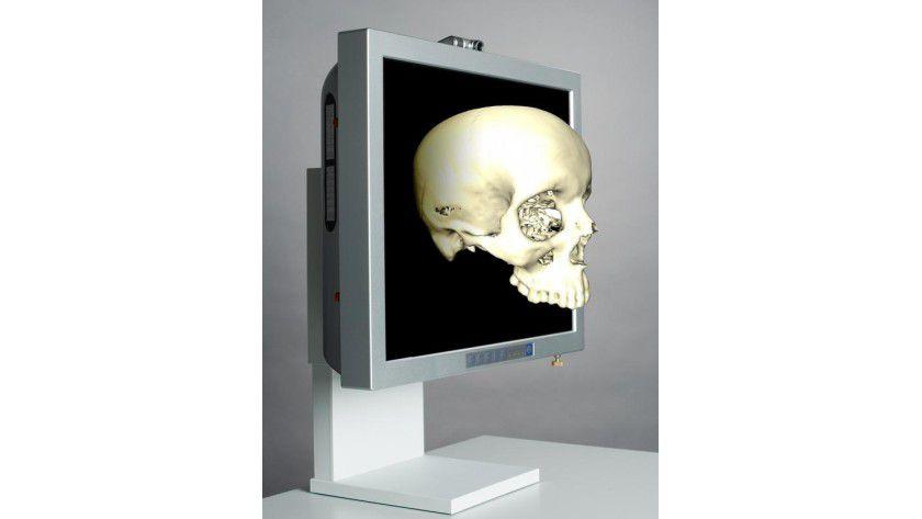 Per Fingerzeig kann der Arzt das dreidimensionale Bild drehen und es von allen Seiten betrachten. Foto: HHI