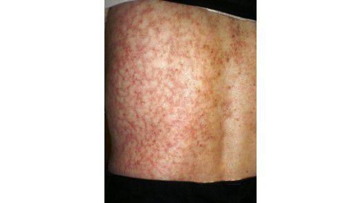Langes Arbeiten mit dem Laptop im Schoß kann zu Toasted skin führen (Foto: Dr. Benabio's The Dermatology Blog).