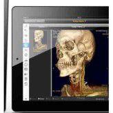 SAP und das Systemhaus PlanOrg bieten direkten Zugriff auf KIS- und Bilddaten. Doch die Ausrüstung mit mobilen Geräten ist teuer.