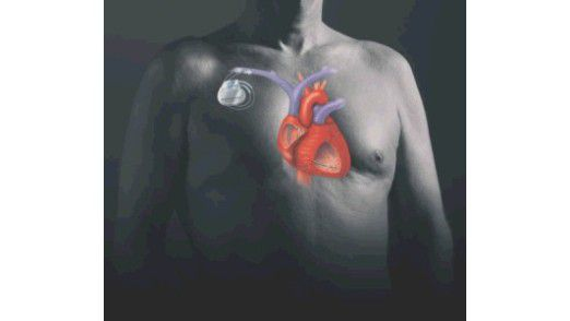 Moderner Herzschrittmacher