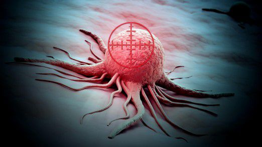 Algorithmen sollen Krebszellen und Tumore künftig noch früher und mit höherer Zuverlässigkeit aufspüren.