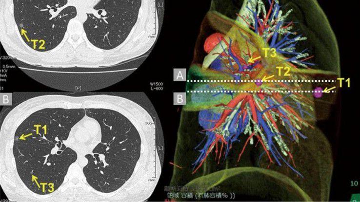 Ein hochauflösender CT-Scan einer Lunge, wie ihn das National Cancer Institute den Teilnehmern zur Verfügung gestellt hat.