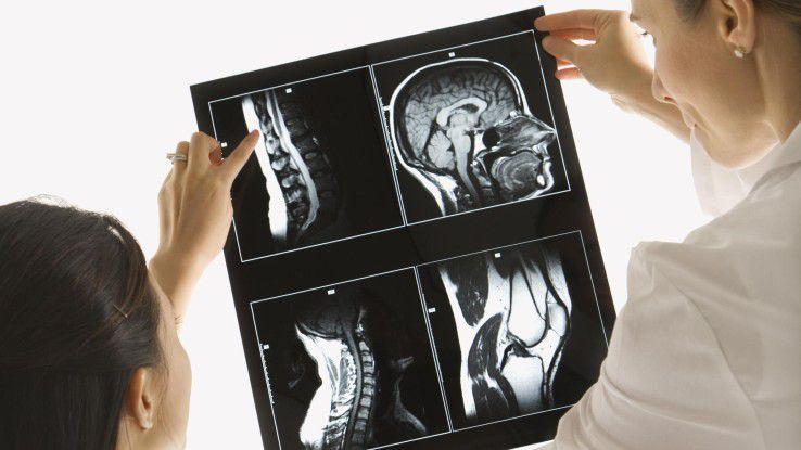 KI soll künftig bei der Auswertung von Röntgenbildern helfen.