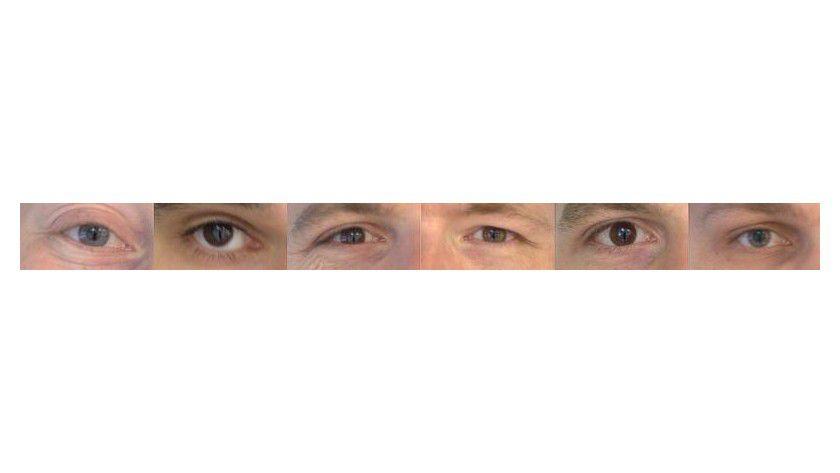 Beispiel für gelungene Aufnahmen der Augenpartie. Foto: TU Braunschweig