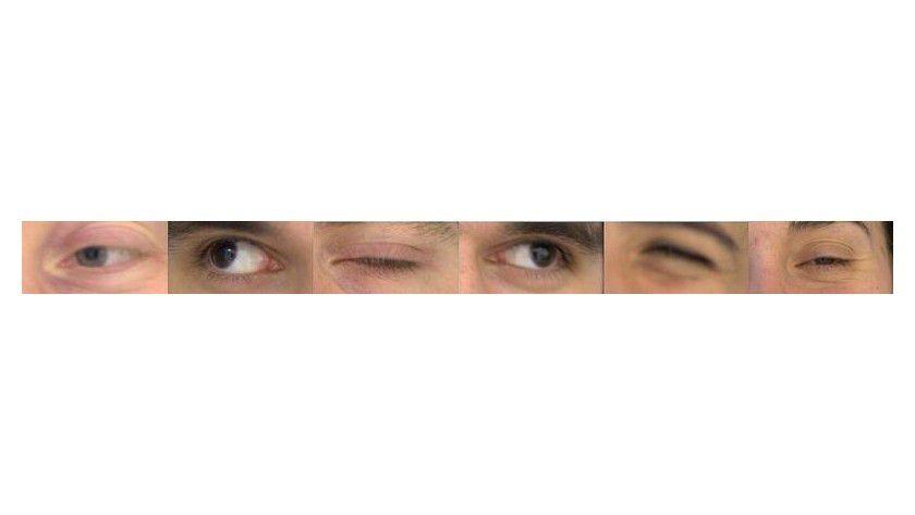 Beispiel für schlechte Aufnahmen der Augenpartie. Foto: TU Braunschweig